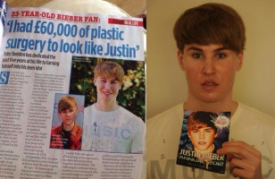 This Guy Spent $100k to Look Kinda Like Justin Bieber
