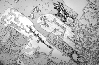 Microscopic Photos Of Human Tears