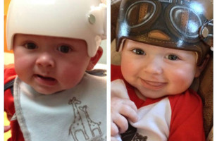 Artist Paints Baby's Medical Helmets