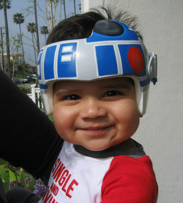 baby-medical-helmet-designs-2