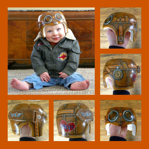 baby-medical-helmet-designs-3