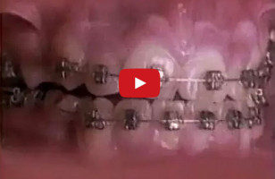 A Time-lapse Showing Braces Straightening Out Teeth