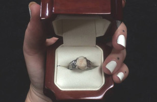 One Man Gifts His Fiance A Wisdom Tooth Engagement Ring