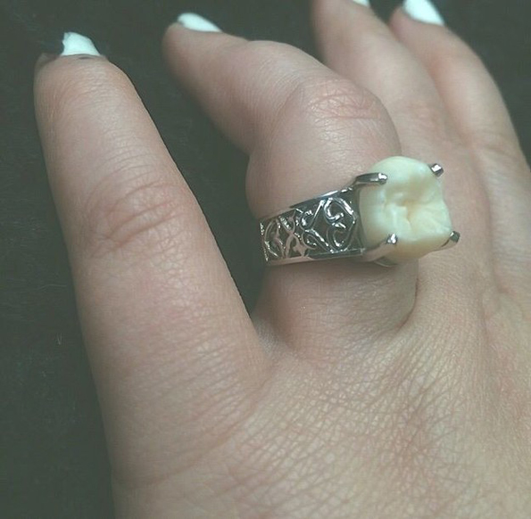 wisdom-tooth-engagement-ring-4