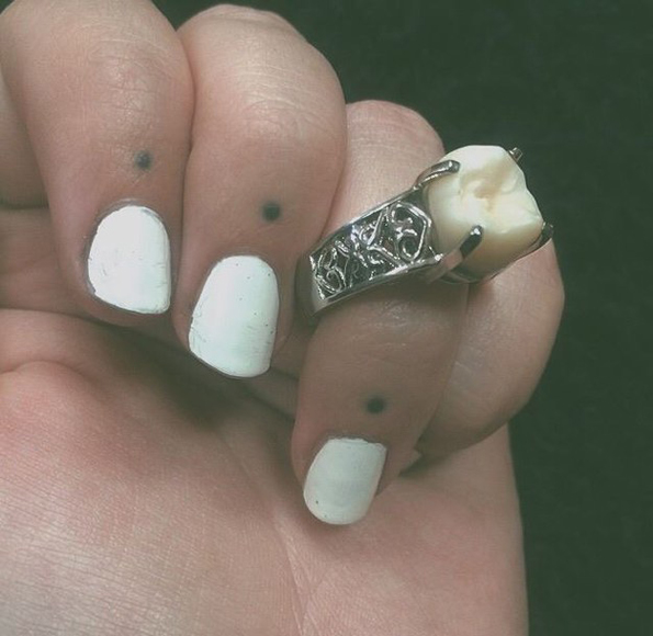 wisdom-tooth-engagement-ring-5